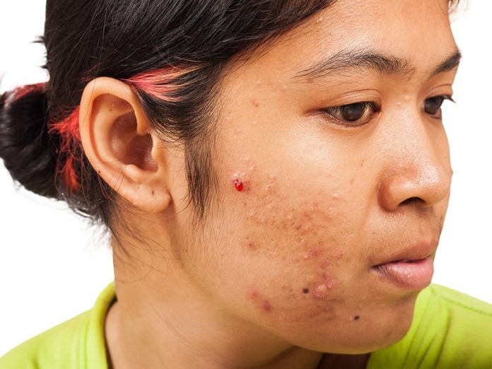 birth control help acne
